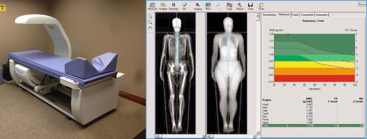 dexa-scan-renue-health.jpg